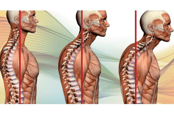 chữa gù lưng